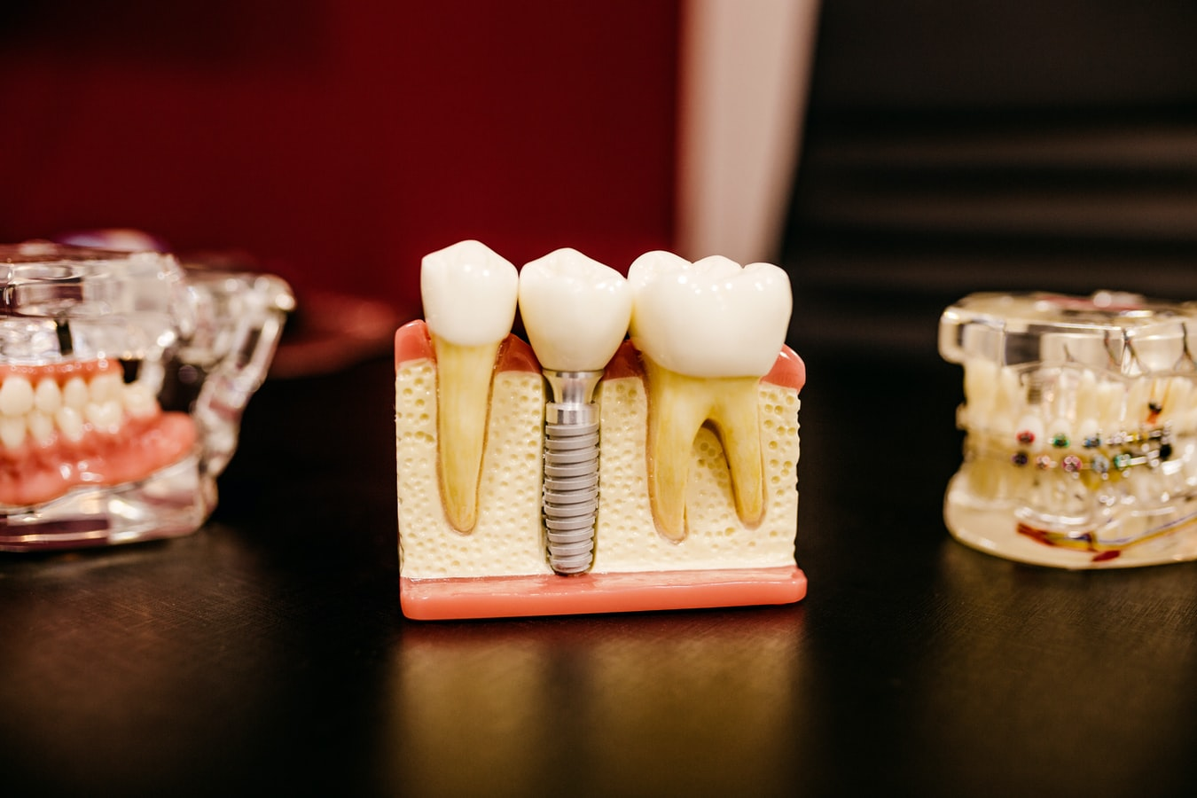 This is a model of teeth.